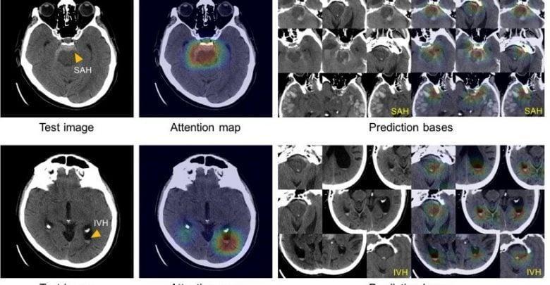تشخیص خونریزی مغزی به یاری هوش مصنوعی