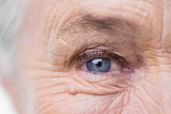 راهی برای جلوگیری از پیری وجود دارد؟